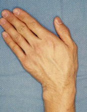 Don't do this! Wrist pain from Ulnar Deviation or Carpal Tunnel
